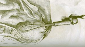 Illustration of the use of forceps from Dr. Smellie's book of anatomical tables, 1793