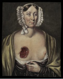 Mrs Prince of Leeds, after surgical removal of a breast. The wound has been left open, 1841 (Source: Wellcome Library, London, image #L0037321, CC BY 4.0)