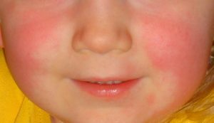 The rash of scarlet fever in a child (Source: Wikimedia Commons CC 4.0 International)
