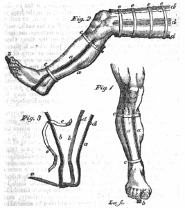 Images of an elastic iron cradle for fractures of the leg. Published by Francis Bush, surgeon, in The Medical and Physical Journal, March, 1815