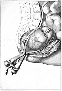 Illustration of use of forceps from Dr. Smellie's book of anatomical tables, Plate 16 (Source: Wikipedia)