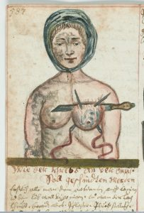 A procedure for the removal of a woman's breast, c. 1675 (Source: Wellcome Library, London, image #L0041078, CC BY 4.0)